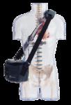 INCOR Linksherzunterstützungssystem mit Tasche